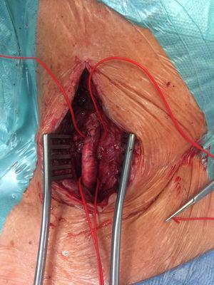 Imagem intraoperatória do aspeto final da artéria carótida comum.