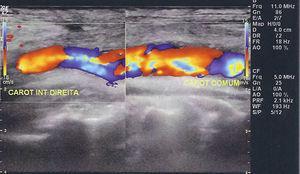Eco‐Doppler: controlo após correção da dissecção; regularidade do lúmen da artéria carótida comum.