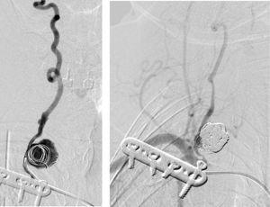 Imagens embolização aneurisma sacular vertebral com coils (Serviço de Neurorradiologia H. S. José).