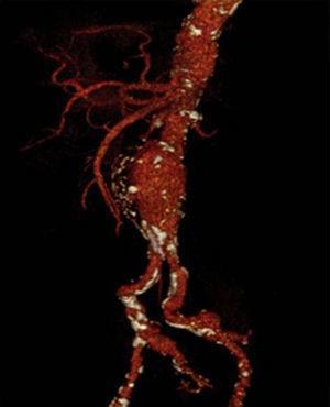 AngioTC com AAA com envolvimento das bifurcações ilíacas.