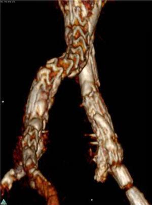 AngioTC com oclusão do stent da hipogástrica esquerda, em provável relação com kink.