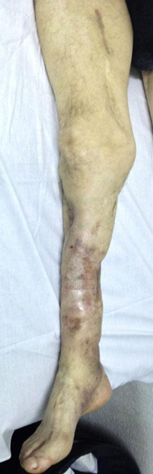 Severely deformed limb with multiple previous fractures, cutaneous grafts, chronic osteomyelitis and complete paralysis of the external sciatic nerve as a sequel of a remote trauma.