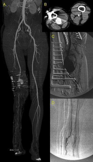 CTA image. (A) Reconstruction showing a permeable pseudo-aneurysm of the distal SFA. Bone fixation material artefacts at the level of popliteal artery. TPT permeable with a peroneal artery as the only distal vessel. Anterior and posterior arteries totally occluded from the beginning. (B) Axial view showing the 76mm diameter pseudo-aneurysm with mural thrombus and calcification. (C) Diagnostic angiography showing the pseudo-aneurysm of the SFA – 1st portion of the popliteal artery, 2nd portion occluded with repermeabilisation of the 3rd portion. (D) The peroneal artery was the only outflow vessel.