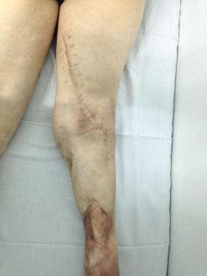 Image after 1 month discharge showing the limb with the proximal extension of the posterior approach.