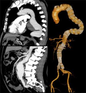 Patient with a 7cm TAA and a 6cm AAA, treated simultaneously.