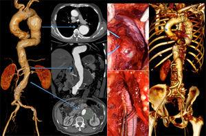 7cm type 4 thoracoabdominal aneurysm with a 6cm aneurysm of the descending thoracic aorta. The patient was treated first by OR (Crawford technique), followed by TEVAR for the TAA.