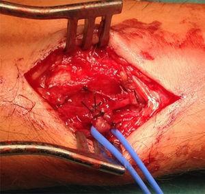 Artéria radial e todas as veias envolvidas laqueadas.