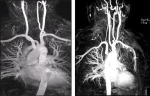 Angio‐RM demonstrando a presença de estenose na origem da artéria subclávia direita aberrante.