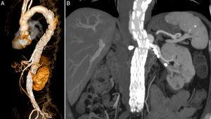 Control CTangio: (A) 3D reconstruction with patent CT and SMA; (B) patent LRA.