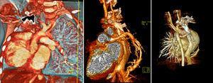 Angiotomografía de tórax con técnica de reconstrucción. Se observa el drenaje venoso pulmonar anómalo (vena en cimitarra). El estudio corresponde a la misma paciente referida en la figura 2.