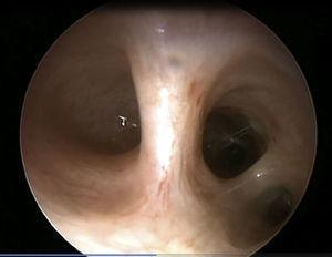 Broncoscopia donde se aprecia la carina principal y el bronquio principal izquierdo terminado en fondo de saco ciego. El bronquio principal derecho es normal. Se logra apreciar bronquio lobar superior derecho y bronquio intermediario.