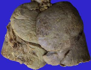 Vista externa de los pulmones que muestra pleura despulida, engrosada con adherencias en la porción basal izquierda y en la superficie numerosos nódulos pequeños.