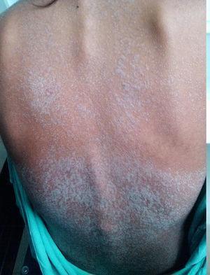 Dermatosis generalizada constituida por placas escamosas de predominio en tronco y extremidades.