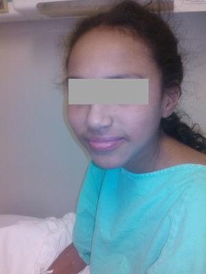 Paciente al momento de su egreso después de la administración de esteroide intravenoso, con desaparición de las lesiones descamativas.
