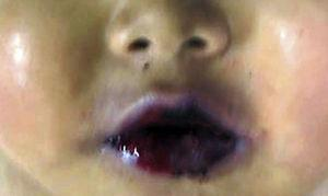 Las lesiones en labios y mucosa oral muestran ampollas y ulceración de la mucosa.