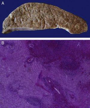 El bazo está aumentado de tamaño y peso (A). Histológicamente se observan extensas zonas de necrosis asociadas al estado de choque (B).