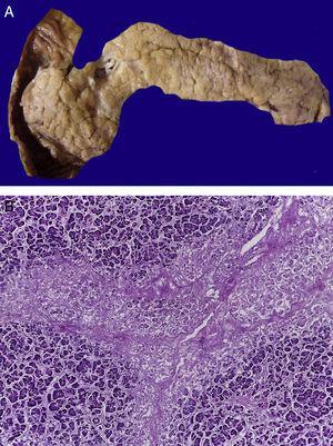 En el páncreas hay extensa necrosis del tejido adiposo peripancreático (A) y del componente acinar (B).