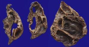 Fotografía macroscópica del lóbulo pulmonar superior izquierdo, que muestra numerosos quistes (el mayor de 6cm de diámetro).