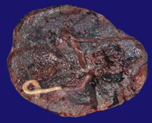 Fotografía macroscópica de la placenta.