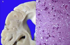 A) Encéfalo con pérdida importante de la sustancia blanca (flechas). B) Corteza cerebral con múltiples calcificaciones.