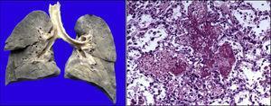 Parénquima pulmonar congestivo de coloración café oscuro. Corte histológico con hemorragia reciente y formación de membranas hialinas (daño alveolar agudo).