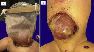 A) Silo íntegro. B) Defecto de pared de 12cm, intestino delgado fuera de la cavidad abdominal, con peritonitis extensa y coloración rojo oscuro.