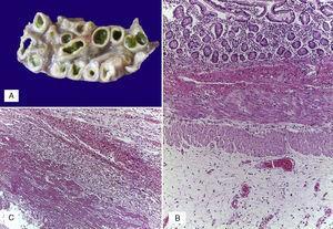 A) Asas de intestino delgado dilatadas, con meconio en su luz, edema de la pared y adherencias interasa. B) Edema de la serosa. C) Engrosamiento del peritoneo por fibrosis, infiltrado inflamatorio mixto y fibrina.