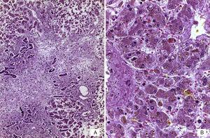 A) Panorámica del hígado con necrosis de hepatocitos en puente y proliferación de neocolangiolos (flecha). B) Colestasis hepatocelular y depósito de bilis en células de Kupffer (HE 400x).