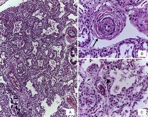 A) Engrosamiento de los tabiques interalveolares por infiltrado de linfocitos. B) Arteria preacinar con datos de enfermedad vascular pulmonar grado B (flecha). C) Trombo de fibrina en capilar (cabeza de flecha) (tinción con HE).