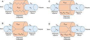 Modelo de resistencia de Starling de la vía aérea superior. A. Un segmento flexible está conectado con un segmento rígido superior (fosas nasales) y un segmento rígido inferior (tráquea). Estos segmentos rígidos se caracterizan por las presiones intraluminales en los segmentos superior e inferior (PSS y PSI), respectivamente, y la resistencia al flujo de aire en los segmentos superior e inferior (RSS y RSI), respectivamente. B. Cuando la PCRIT > PSS, PSI, la vía respiratoria se cierra. C. Cuando ambas, PSS y PSI se mantienen por encima de PCRIT, la vía aérea es permeable. D. Cuando PSS es mayor que PCRIT, pero PSI es menor que PCRIT, la vía aérea presenta un flujo limitado en la inspiración y puede alternar rápidamente entre un estado abierto y uno cerrado9,10.