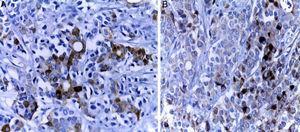 A. Los inmunomarcadores epiteliales fueron positivos en las áreas con formación de glándulas (citoqueratina 7). B. El componente sólido presenta diferenciación endocrina, evidente con los marcadores endocrinos (cromogranina).