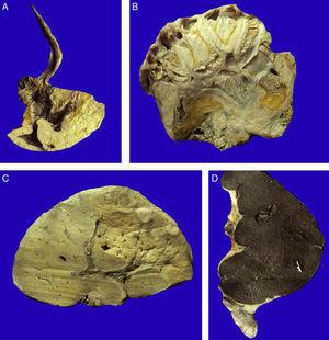 A. El carcinoma gástrico tipo linitis plástica se diseminó a través de la pared, respetando la mucosa. B. La extensa diseminación linfática y a través de las serosas dio origen a carcinomatosis peritoneal. Las asas intestinales están inmersas en la neoplasia. C. La diseminación hematógena provocó metástasis hepáticas múltiples. D. La neoplasia infiltró la cápsula esplénica, que se ve engrosada, de color amarillo blanquecino, y los ganglios linfáticos.