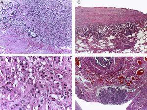 A. La pared gástrica esta infiltrada por una neoplasia poco diferenciada. B. La producción de mucosustancias es intracelular, lo que origina las células llamadas en anillo de sello. La diseminación tumoral fue extensa linfática y hematógena. C. La pleura está afectada y focalmente el parénquima pulmonar. D. Los tejidos blandos pélvicos muestran infiltración por la neoplasia; se observa la serosa de una salpinge.