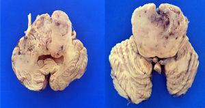 En los cortes transversales del tallo cerebral se muestra la neoplasia que infiltra de forma bilateral con aumento del volumen del puente, mesencéfalo y bulbo.