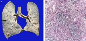 Los pulmones se encontraron aumentados de tamaño y peso. La superficie de corte muestra zonas de consolidación de color blanco (A). Los cortes histológicos muestran intenso infiltrado inflamatorio de leucocitos polimorfonucleares que destruyen la pared de un bronquiolo (B).