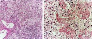 Se observó edema pulmonar, infiltrado inflamatorio de linfocitos y macrófagos intraalveolares con material de color café y aspecto granular (A). Se encontró daño alveolar difuso con formación de membranas hialinas (B).