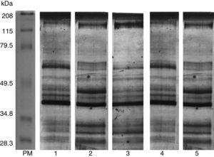 Electroforesis de los productos de excreción-secreción. 1. PES de la cepa de referencia Trichinella spiralis; 2. PES Z1; 3. PES Z2; 4. PES Z3; 5. PES Z4. Todos los PES detectados por electroforesis al 10% y teñidos con plata. Se observa que existen diferencias y similitudes en el perfil proteico.