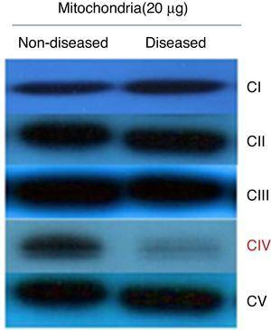 Representative Western blot of OXPHOS complexes (I-V). Proteins were isolated from mitochondria and separated by SDS-PAGE. The reaction bands showed a clear decrease in complex IV levels.