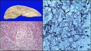 Lesiones subcapsulares de hígado; microscópicamente se observan granulomas con hifas de Aspergillus (Izquierda: HE 10x; derecha: Grocott 40x).