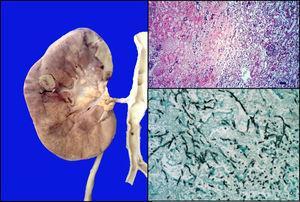 Lesión nodular en la unión cortico medular; microscópicamente se observan émbolos con hifas de Aspergillus (HE y Grocott 10x).