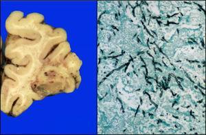 Corteza frontal con lesión de fondo necrótico-hemorrágico; microscópicamente se observan hifas de Aspergillus (Grocott 10x).