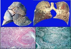 Arriba: pulmón con engrosamiento de la pleura, necrosis del parénquima y lesiones quísticas en las bases. Abajo: imágenes histológicas con émbolos de hifas de Aspergillus. (HE y Grocott 10x).