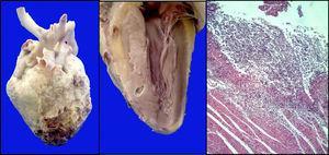Se muestra engrosamiento importante del pericardio, septum cardiaco con abscesos perforados; microscópicamente se observa infiltrado inflamatorio linfocitario e hifas de Aspergillus (HE 10x).