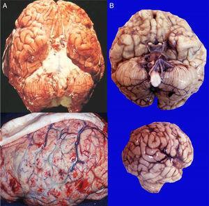 Se compara la vista de la base del cerebro y la cara lateral de un paciente con meningitis por meningococo, donde se observa abundante material purulento, gris verdoso e intensa congestión vascular (A), con el paciente referido en este caso (B).