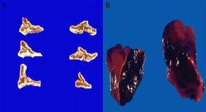 Los cortes seriados de las suprarrenales del paciente no presentan alteración (A). En contraste, se observan las glándulas suprarrenales de un paciente con meningococcemia. Ambas suprarrenales están aumentadas de peso y tamaño y muestran necrosis hemorrágica total (B).