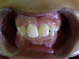 Imagen postoperatoria (18 meses) donde se observa el alineamiento dental y disminución del aumento de volumen.