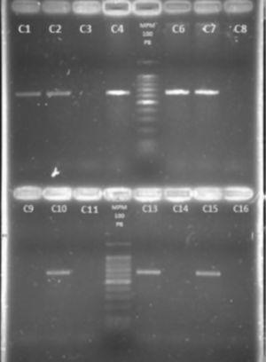 Detección del gen femB. Electroforesis en gel de agarosa al 2%. Carriles: 1. cepa 211N; 2. cepa 6F; 3. cepa 67F; 4. cepa 106N; 5. marcador de peso molecular 100pb; 6. cepa 139N; 7. cepa 637F; 8. cepa 287N; 9. cepa 527F; 10. cepa 220N; 11. cepa 12F; 12. Marcador de peso molecular 100pb; 13. cepa 105N; 14. S. epidermidis ATCC 35983; 15. S. aureus ATCC 29213; 16. Control de reactivos.