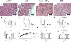 Effect of aqueous extract of stevia (AES) on liver histology and general markers of liver damage in cirrhotic rats. Hematoxylin and eosin staining in the livers of control (A), CCl4-treated (B), AES+CCl4-treated (C), and AES-treated (D) rats. Serum alanine aminotransferase (ALT) (E), alkaline phosphatase (AP) (F) and gamma-glutamyl transpeptidase (γ-GTP) (G) activity and the total bilirubin concentration (I) were determined. The time course of body weight gain during the experiment (J), area under the curve (AUC) (K) and body/liver weight ratios (L) are shown. Each bar represents the mean value of experiments performed in duplicate±SE (n=8). (a) P<0.05 compared with the control group; (b) P<0.05 compared with the CCl4 group.