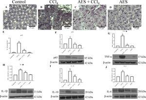 The expression of NF-κB (p65) and proinflammatory cytokines was attenuated by aqueous extract of stevia (AES) in CCl4-induced cirrhosis. Representative images of p65 immunohistochemistry in liver slices from control (A), CCl4-treated (B), AES+CCl4-treated (C), and AES-treated (D) rats. Scale bar=25μm. Percentage of positivity for p65 obtained from immunohistochemistry slices (n=3) (E). The levels of the p65 (F), TNF-α (G), interleukin (IL)-1β (H), IL-10 (I), and Il-6 (J) proteins in samples of liver tissues were examined by western blot analysis (n=3). β-Actin was used as a control. The values are presented as fold increases in the OD values normalized to the values of the control group (control=1). Each bar represents the mean value±SE. (a) P<0.05 compared with the control group; (b) P<0.05 compared with the CCl4 group.
