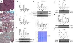 Aqueous extract of stevia (AES) prevents fibrosis and profibrogenic mediators in CCl4-treated rats. Effect of AES on Masson's trichrome staining in the livers of control (A), CCl4-treated (B), AES+CCl4-treated (C), and AES-treated (D) rats. Scale bar=200μm. The percentage of fibrotic areas in the histological sections is shown (E) (n=3). The collagen levels were measured as the liver hydroxyproline content (F) (n=8). The levels of the collagen 1 alpha (Col-1α) (G), precursor and active metalloproteinase (MMP13) (H), connective tissue growth factor (CTGF) (J), platelet derived growth factor (PDGF) (K) and Smad7 (L) proteins in samples of liver tissue were determined by western blot analysis. β-Actin was used as a control. The activity of MMP2 (I) was determined by zymography (n=3). The values are presented as fold increases in OD values normalized to the values of the control group (control=1). Each bar represents the mean value±SE. (a) P<0.05 compared with the control group; (b) P<0.05 compared with the CCl4 group.
